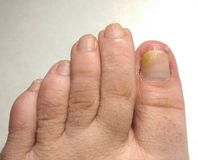 Yellow Toenail Syndrome. Closeup. royalty free stock image