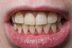 Yellow uneven broken teeth. Close stock photography