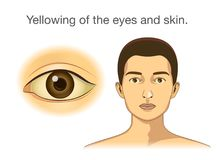 Yellowing of the eyes and skin. Illustration about abnormal symptom of human body from health problems Royalty Free Stock Image