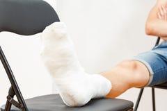Yeso de la lesión en la pierna del hombre que se sienta, cuidado foto de archivo libre de regalías