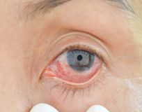 Yeux avec des allergies chimiques image libre de droits