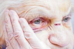 Yeux et visage blessés du ` s de femme agée photo stock