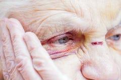 Yeux et visage blessés du ` s de femme agée photographie stock libre de droits