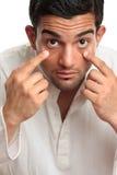 Yeux injectés de sang observés troubles d'homme fatigué Images stock