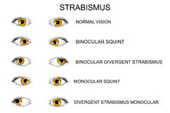 yeux types de strabismus illustration de vecteur