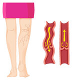 Żylakowate żyły w ludzkiej nodze royalty ilustracja