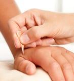 Yoneyama Shonishin Akupunktur-Hilfsmittel Stockbild