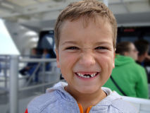 When you loosing your teeth... Stock Photo
