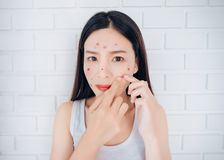 Young Asian woman squeeze acne cheeks problem face stock image