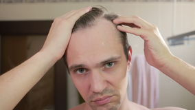 Young attractive man inspects a receding hairline in the bathroom. Baldness