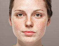 Young beautiful freckles woman face portrait with healthy skin Stock Photos