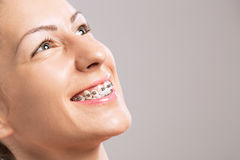 Young beautiful girl with braces on teeth Stock Photography