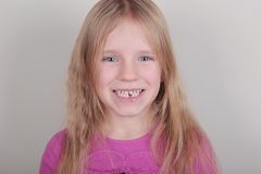 Young girl lost her first bottom front milk teeth. Childhood healthcare concept. Young blond beautiful girl lost her first bottom front milk teeth. Childhood stock images