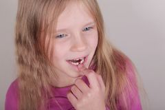 Young girl lost her first bottom front milk teeth. Childhood healthcare concept. Young blond beautiful girl lost her first bottom front milk teeth. Childhood stock photos