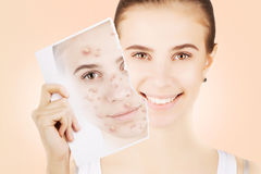 Blond woman releases her skin fron pimples Stock Photos