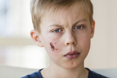 Young boy with face injury Stock Images
