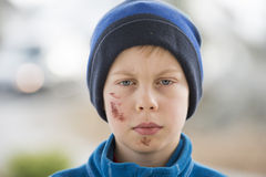 Young boy with a face injury Stock Photo