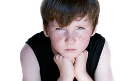 Young boy with freckle Stock Photos