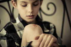Young Boy Looking at his Knee with Scratches Royalty Free Stock Photos