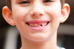 Young boy missing milk teeth portrait. Portrait of young child with loose and missing milk teeth, boy happy joyful friendly smiling Royalty Free Stock Images