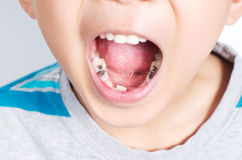 Young boy with mouth wide opened Royalty Free Stock Photos