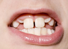 Young Boy's Teeth Closeup. Closeup of a young boy's mouth with permanent teeth growing in Stock Image