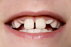 Young Boy's Teeth Closeup. Closeup of a young boy's mouth with permanent teeth growing in Royalty Free Stock Photos