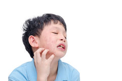 Young boy scratching his face Royalty Free Stock Image