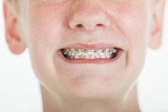 Young boy showing off his orthodontic braces Royalty Free Stock Image