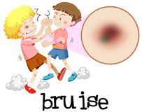 Young boys fighting with magnified bruise. Illustration Stock Photos
