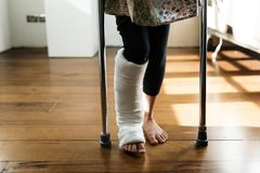 Young Caucasian girl with broken leg in plaster cast Stock Images