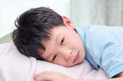 Young child with rash lying on bed. Young asian child face with rash lying on bed Stock Image