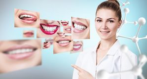 Young dentist doctor near collage of healthy beautiful smiles. Young dentist doctor pointing with finger on collage of healthy beautiful smiles. Over blue royalty free stock images