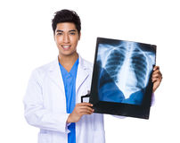 Young doctor holding with x ray film Royalty Free Stock Image