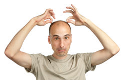 Young funny bald man. Making grimaces Stock Photography