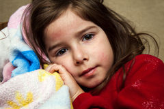 Young Girl With a Fever Rash. A young girl with a fever rash, after receiving an MMR vaccine, cuddles with a blanket and looks at the camera with a blank Royalty Free Stock Photo