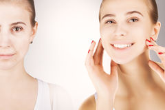 Young girl with grapnics of her old skin over white Royalty Free Stock Image