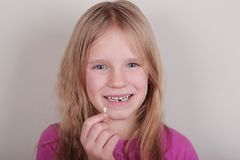 Young girl lost her first bottom front milk teeth. Childhood healthcare concept. Young blond beautiful girl lost her first bottom front milk teeth. Childhood royalty free stock photo