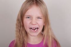 Young girl lost her first bottom front milk teeth. Childhood healthcare concept. Young blond beautiful girl lost her first bottom front milk teeth. Childhood royalty free stock photos