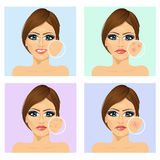 Young girl with a problem and clean skin of the face Royalty Free Stock Photography
