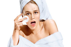 Young girl in shock of her acne with cotton pad in her hand. Portrait of ugly girl with towel on her head. Skin problem stock images