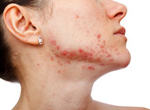 Young girl with skin problem Royalty Free Stock Images