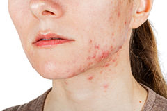 Young girl with skin problem Stock Image