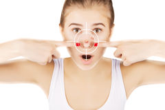 Young girl with target on her acne Stock Photography