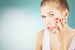 Young girl with target on her acne Royalty Free Stock Photos
