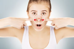 Young girl with target on her acne Stock Images