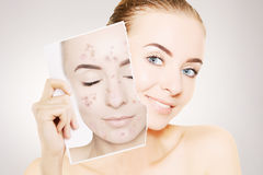 Young gorgeous woman with perfect skin releases her face from pi Royalty Free Stock Photo