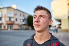 A young happy guy with problem skin having fun while walking around the summer city. Emotional portrait, no retouch. Romantic handsome young man in street royalty free stock images