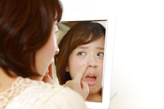 Young Japanese woman worries about dry rough skin Stock Image