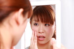 Young Japanese woman worries about dry rough skin Royalty Free Stock Photos